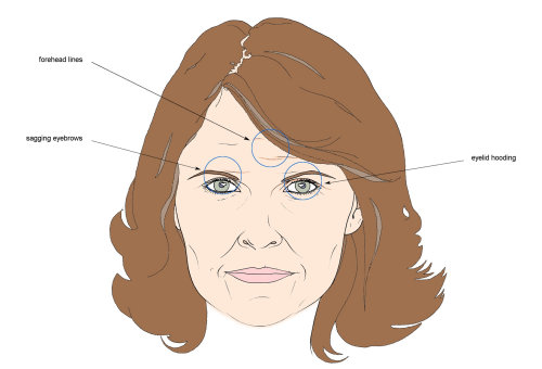 Line illustration of marked woman face
