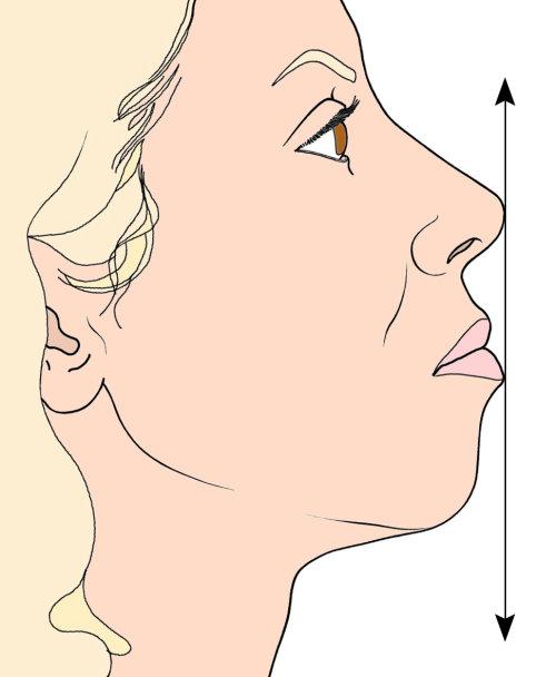 Medical illustration of facial size