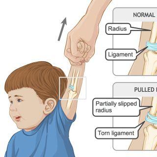 Pulled elbows in children illustration - Shelley Li Wen Chen