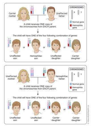 Genetics hemophilia inheritance illustration by Shelley Li Wen Chen