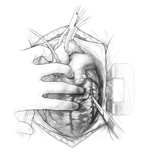 CABG procedure illustration by Shelley Li Wen Chen