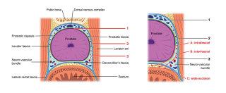 Nerve-sparing radical prostatectomy illustration by Shelley Li Wen Chen