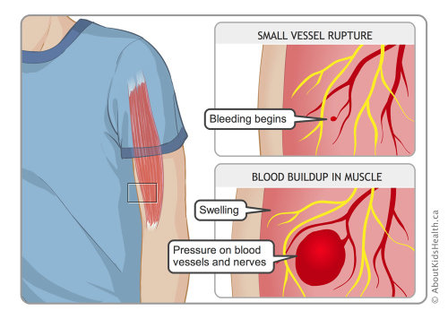 Illustration for hemophilia by Shelley Li Wen Chen