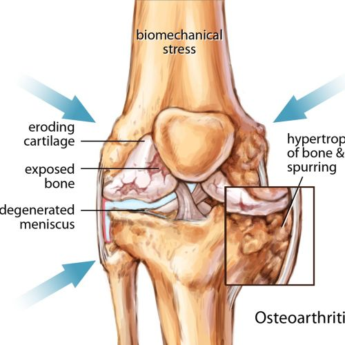 Osteoarthritis Knee Joint illustration by Shelley Li Wen Chen