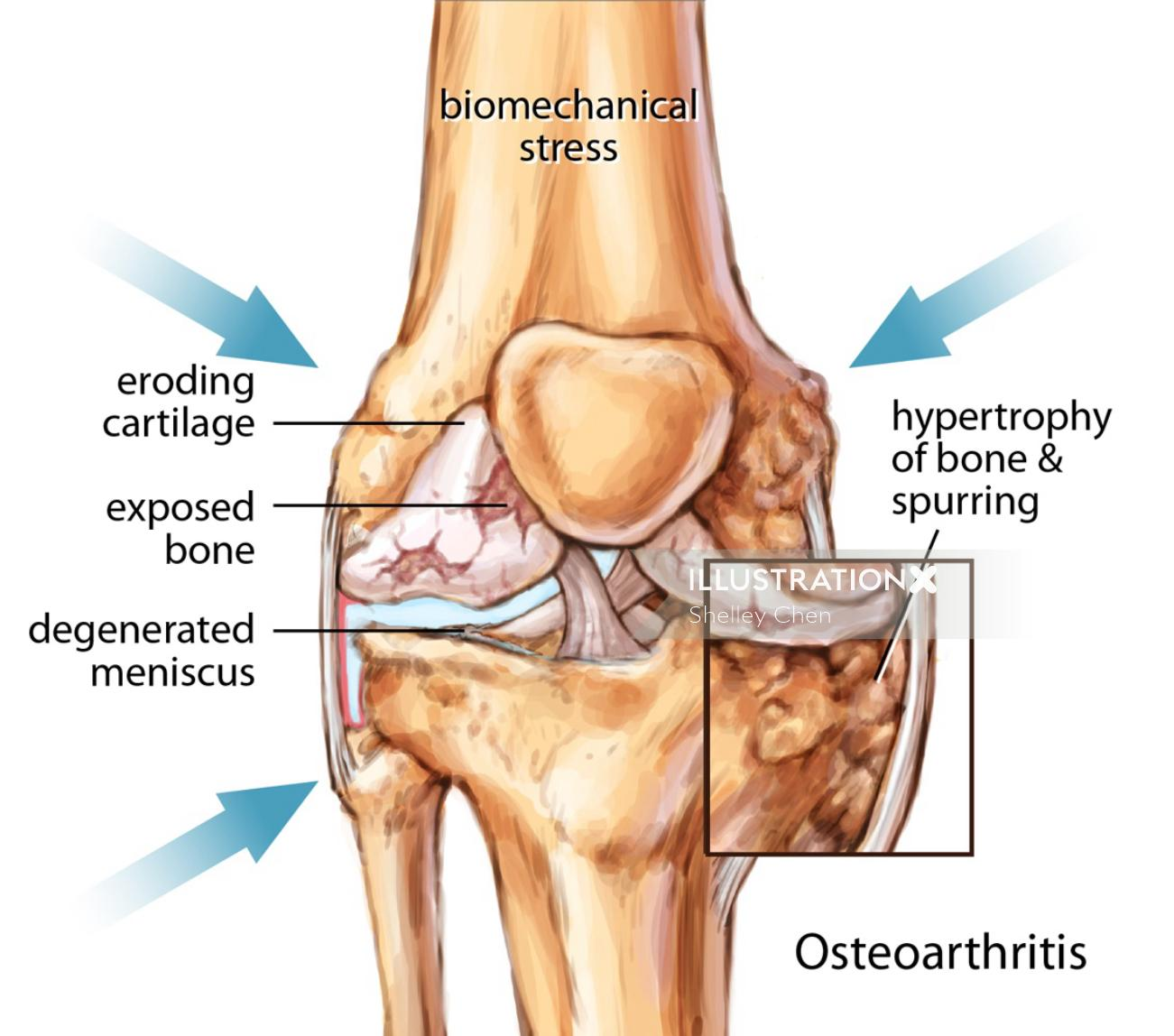 Osteoarthritis Knee Joint illustration by Shelley Li Wen Chen