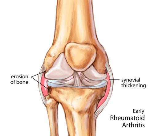 Early rheumatoid arthritic knee joint illustration by Shelley Li Wen Chen