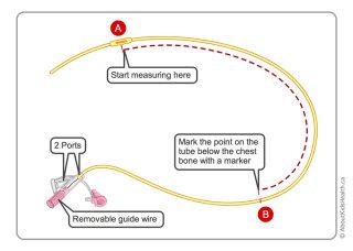 Correct measurement of NG tube illustration by Shelley Li Wen Chen