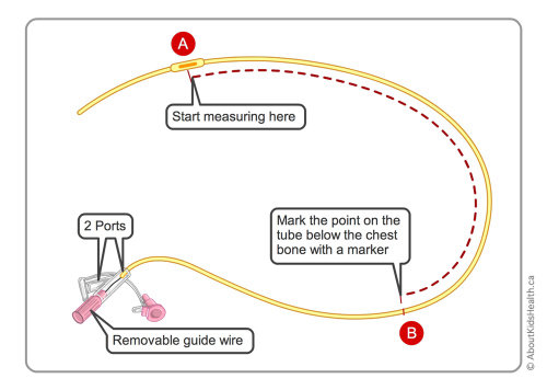 Correct measurement of NG tube illustration by Shelley Li Wen Chen