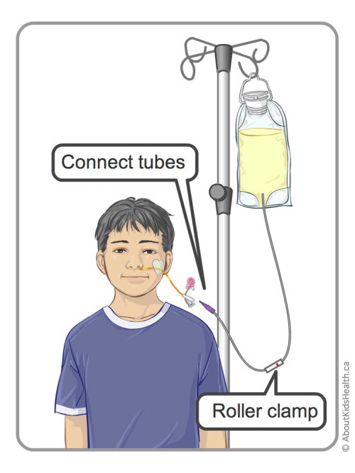 Feeding by Gravity in NG Tube illustration by Shelley Li Wen Chen
