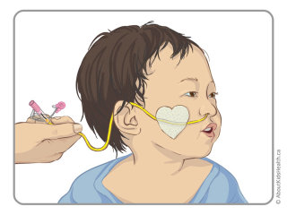 NG Tube Taping in Infants illustration by Shelley Li Wen Chen