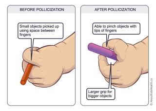 AKH_pollicization illustration by Shelley Li Wen Chen