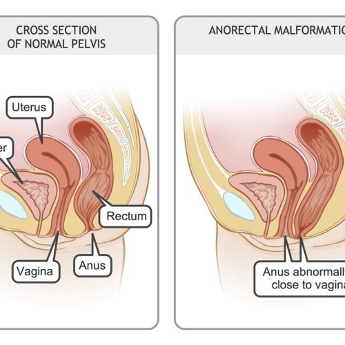 Girl anorectal malformations illustration by Shelley Li Wen Chen