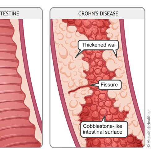 Crohn's disease illustration by Shelley Li Wen Chen