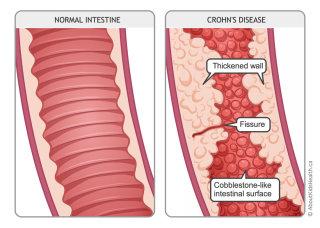 Crohn's disease illustration by Shelley Li Wen Chen