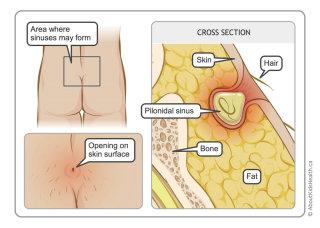 Pilonidal cyst illustration by Shelley Li Wen Chen