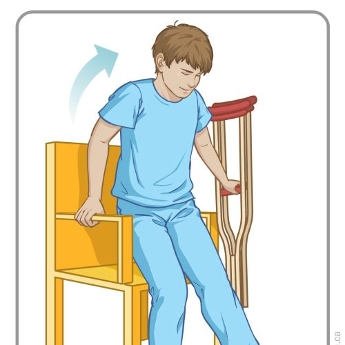 Medical graphic boy broken leg