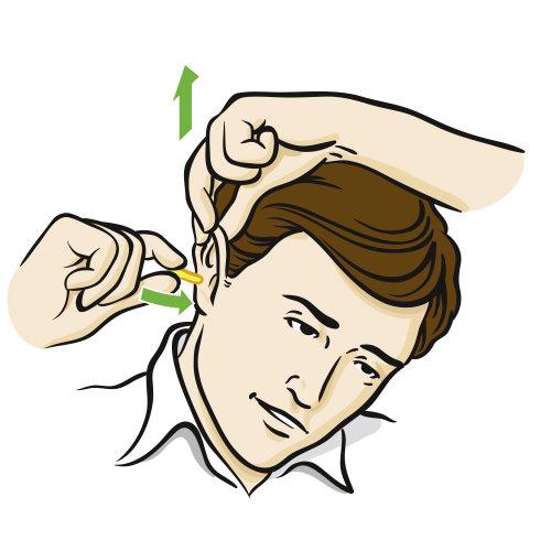 Uma ilustração do procedimento de queda de orelha