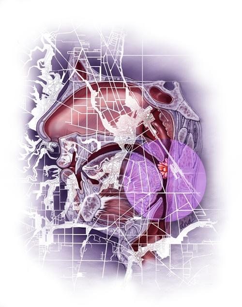 A medical illustration about cancer