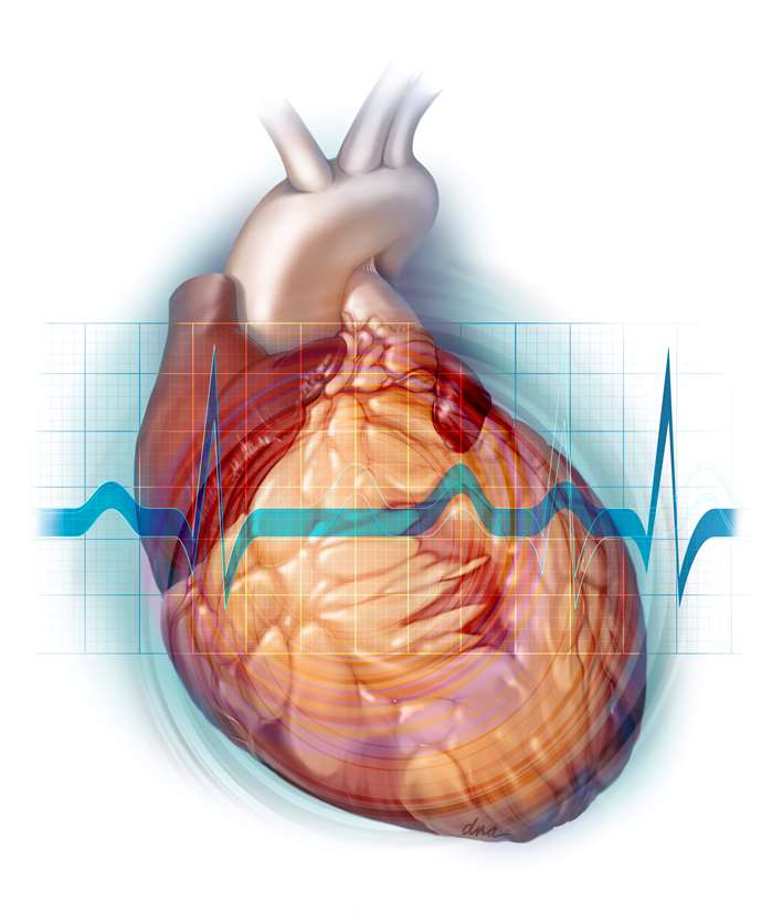 Fatty Heart Medical Illustration For JADPRO