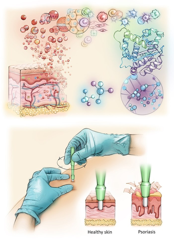 Medical illustration of Protein Research